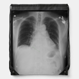 Mochila del ~ del rayo del pecho X