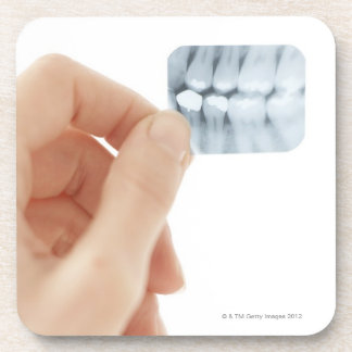 MODEL RELEASED. Dental X-ray. Beverage Coaster