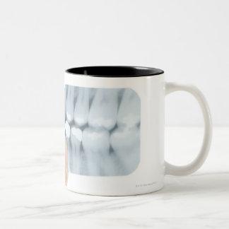 MODEL RELEASED. Dental X-ray. Coffee Mug