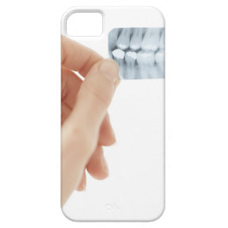 MODEL RELEASED. Dental X-ray. iPhone SE/5/5s Case