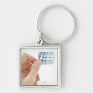MODEL RELEASED. Dental X-ray. Keychain