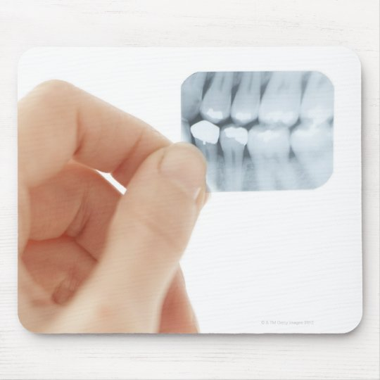MODEL RELEASED. Dental X-ray. Mouse Pad
