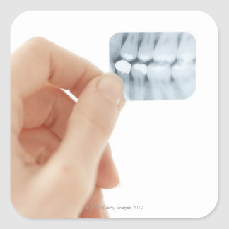 MODEL RELEASED. Dental X-ray. Square Sticker
