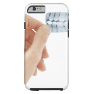 MODEL RELEASED. Dental X-ray. Tough iPhone 6 Case