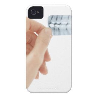 MODELO LANZADO Radiografía dental
