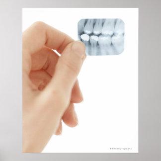 MODELO LANZADO. Radiografía dental Póster
