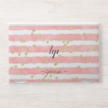 "Modern gold glitter polka dots pink watercolor HP laptop skin<br><div class=""desc"">Modern gold glitter polka dots pink watercolor stripes pattern,  add your name or monogram.</div>"