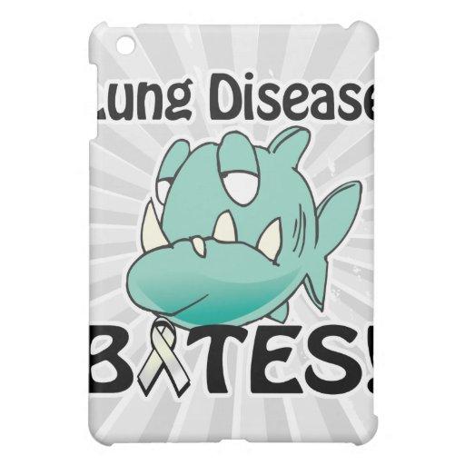 MORDEDURAS de la enfermedad pulmonar