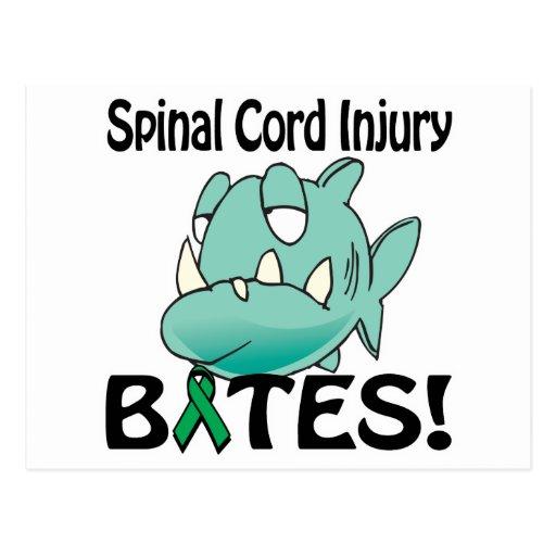 MORDEDURAS de lesión de la médula espinal Tarjetas Postales