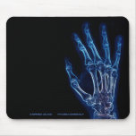 Mousepad azul de la radiografía de la mano tapetes de raton