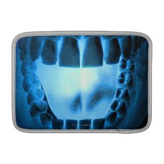 Mouth Area MacBook Sleeve