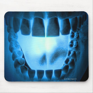 Mouth Area Mouse Pad