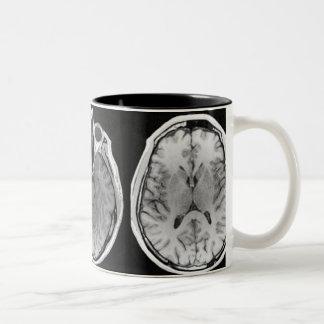 MRI brain image mug