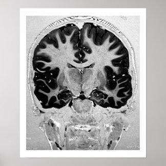 MRI Head Poster