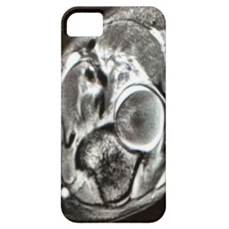 MRI image abstract lokings iPhone SE/5/5s Case