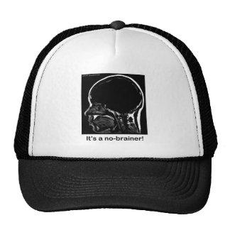 MRI: It's a no-brainer! Mesh Hats