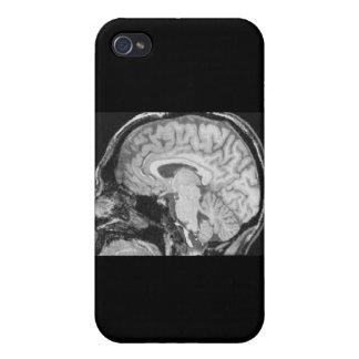 MRI Mediados de-sagital iPhone 4 Protectores