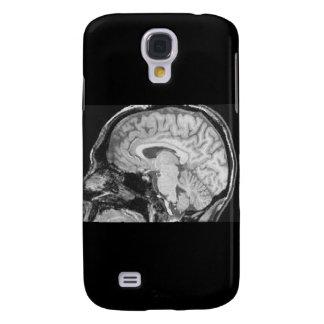 MRI Mediados de-sagital Funda Para Galaxy S4