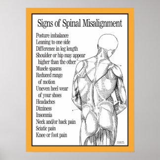 Muestras del poster espinal del desalineamiento