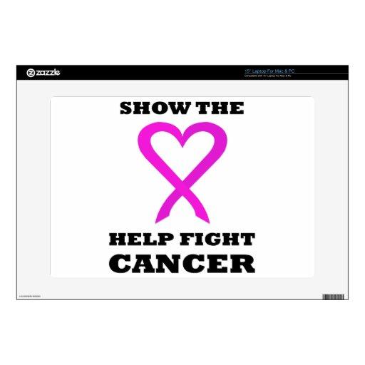 Muestre al cáncer BL01 de la lucha de la ayuda del Calcomanía Para Portátil