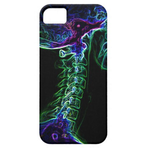 Multi-color C-spine iPhone 5 case