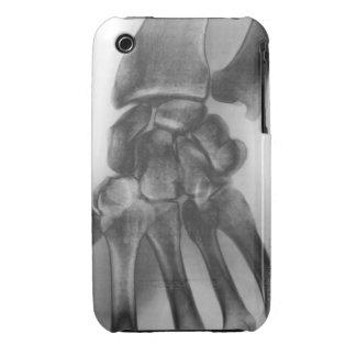 Muñeca normal, radiografía iPhone 3 Case-Mate coberturas