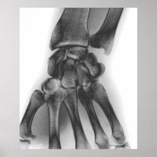 Muñeca normal radiografía posters