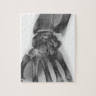 Muñeca normal, radiografía puzzle con fotos