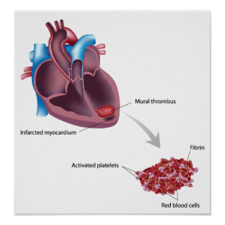 Mural thrombus after heart attack Poster