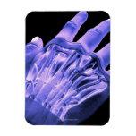 Músculos de la mano iman de vinilo