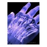 Músculos de la mano tarjeta postal