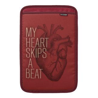 My Heart Skips A Beat MacBook Sleeve
