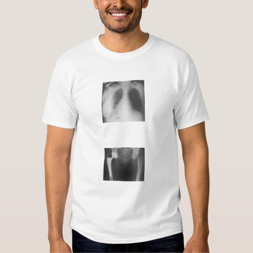 My hip just cracked from sadness. shirt