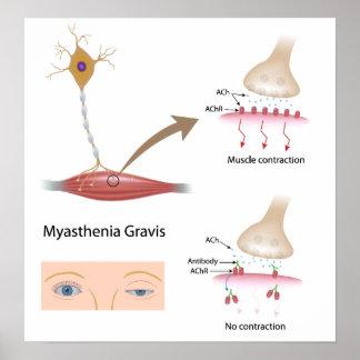 Myasthenia Gravis eye Poster