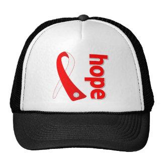 Myelodysplastic Syndromes Hope Ribbon Trucker Hat
