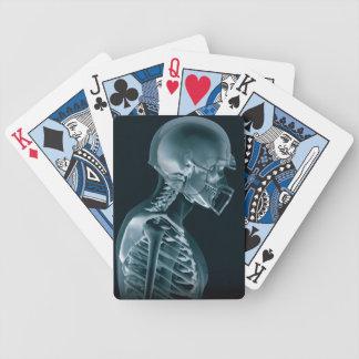 Naipes de la radiografía del fútbol baraja cartas de poker