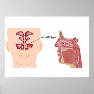 Nasal polyps Poster