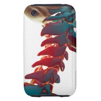 Neck Bones iPhone 3 Tough Cover