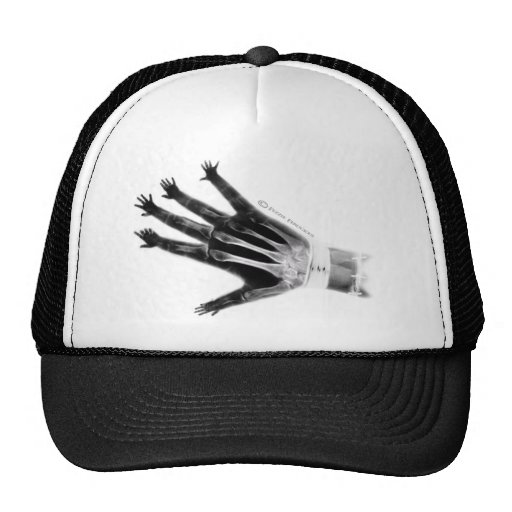 Need A Hand? Trucker Hat