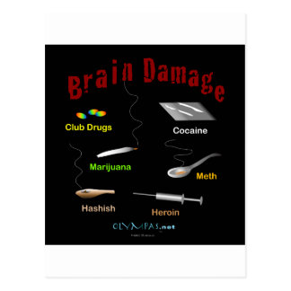 Negro del daño cerebral tarjetas postales