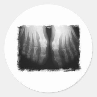 Negro y blanco esqueléticos humanos de huesos de pegatina redonda