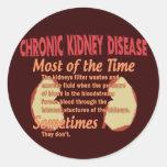 Nephrology T-shirts & Gifts Sticker