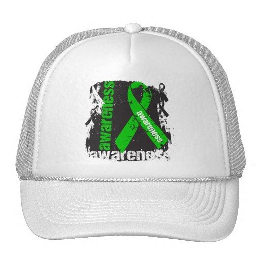 Neurofibromatosis Awareness Grunge Ribbon Trucker Hat