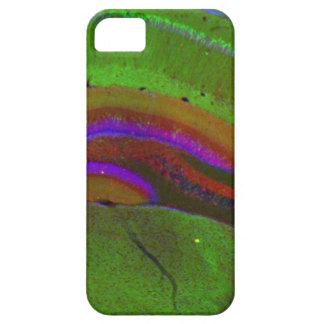 Neuronas de Hippocampal iPhone 5 Carcasas