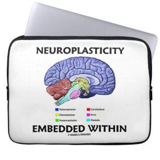 Neuroplasticity Embedded Within (Brain Anatomy) Laptop Sleeves