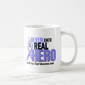 Never Knew A Hero 2 Dad Prostate Cancer Coffee Mug