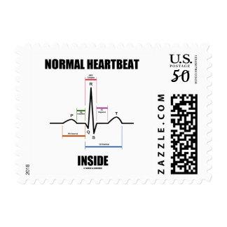 Normal Heartbeat Inside ECG EKG Electrocardiogram Postage