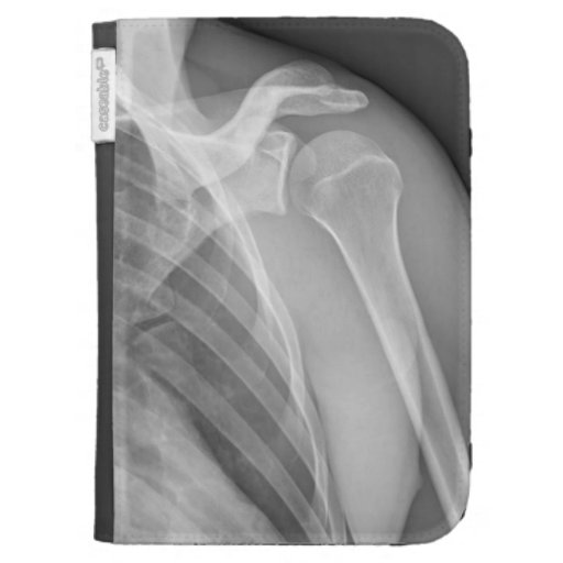 Normal shoulder. X-ray of the healthy left Kindle 3 Cases