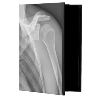 Normal shoulder. X-ray of the healthy left iPad Air Cover