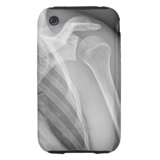 Normal shoulder. X-ray of the healthy left iPhone 3 Tough Cover